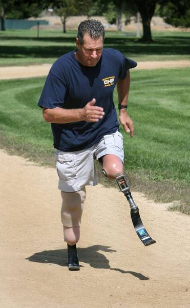 CHP trooper returns to work on 'bionic' legs | TahoeDailyTribune com