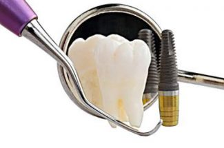 What to know when getting dental implants