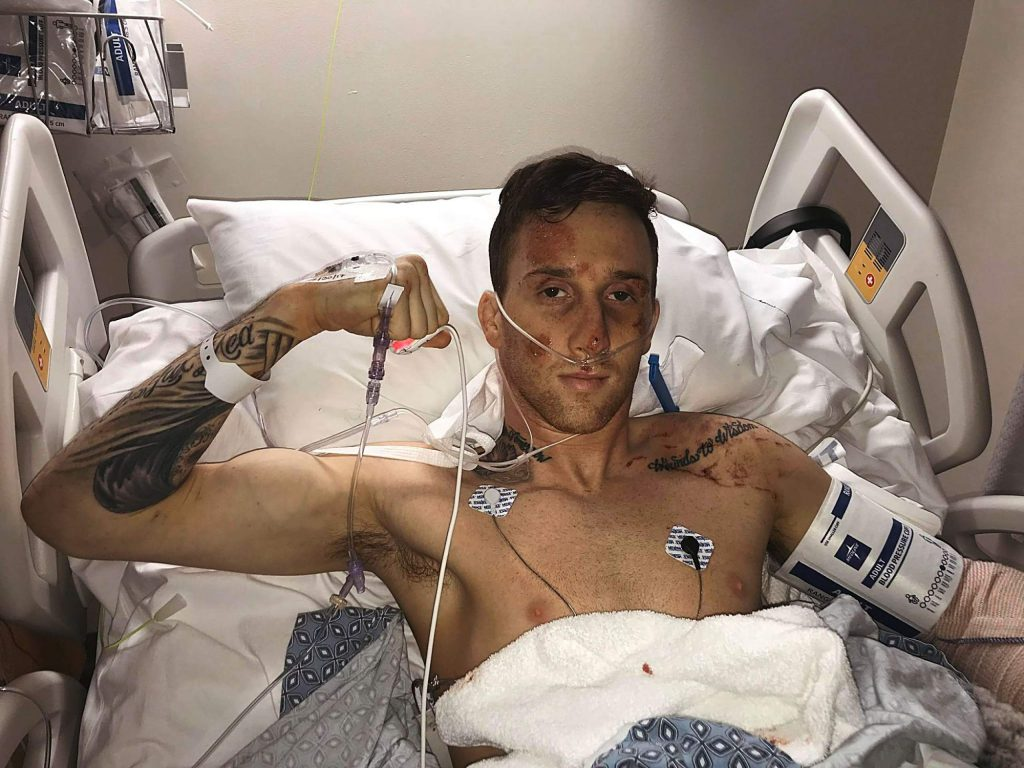 Chris Cocores in the hospital after the accident.